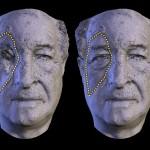 Sequência de imagens de confecção da prótese em voluntário de pesquisa desenvolvida na UNIP (Foto Divulgação)