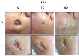 """Imagens mostrando a comparação entre plantas do pé com lesões tratadas com a biomembrana (caso A) e com tratamento convencional (caso B), pelo Grupo de Pesquisa """"Biotecnologia Molecular de Látex Vegetal""""  da Universidade Federal do Ceará (Foto Divulgação)"""